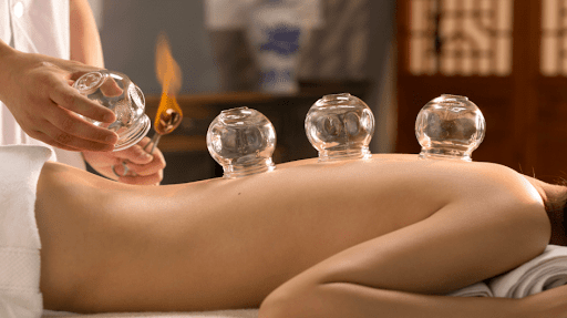 Cupping Massage Culemborg